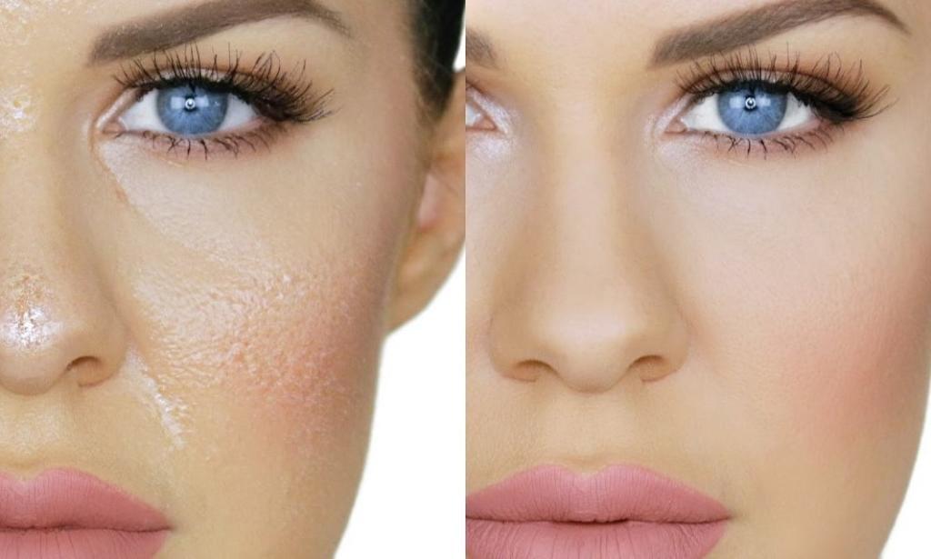 """صورة خطوات قبل و بعد الميك اب هتفرق في بشرتك""""أنتي أحلي""""."""